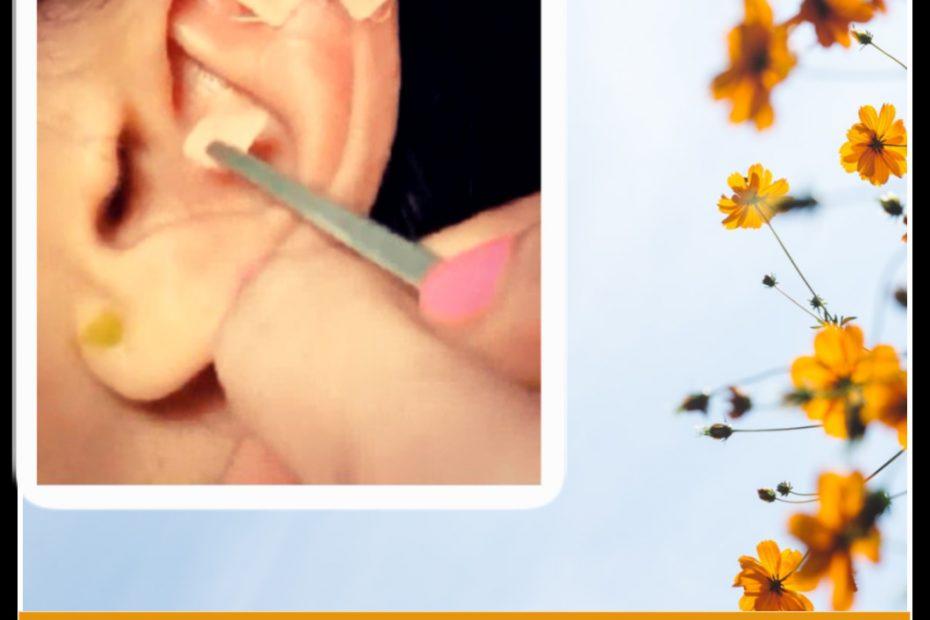 acupuntura-para-ansiedad